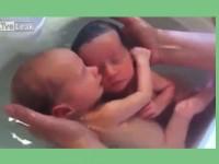 Bayi Kembar ini Belum Sadar Sudah Dilahirkan