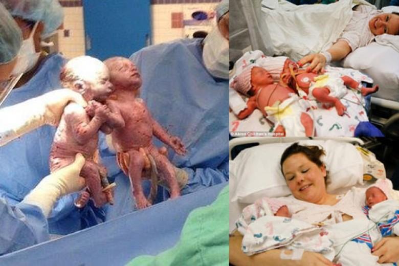 Bayi Kembar Lahir Berpegangan Tangan