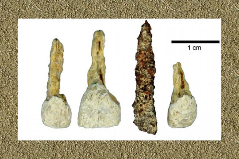 Gigi Palsu Tertua Ditemukan di Eropa