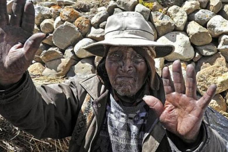 Lelaki Tertua di Dunia Tutup Usia