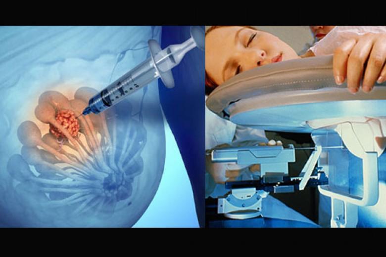 Metode Paling Efektif Deteksi Kanker Payudara