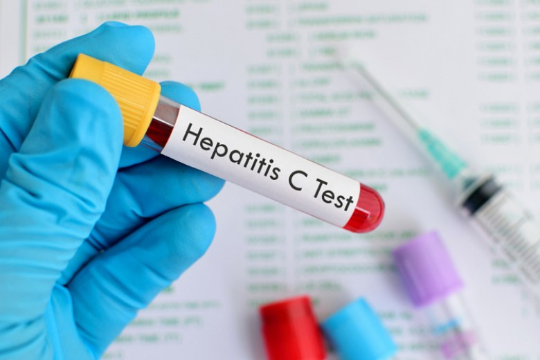 WHO Sorot Hepatitis di Asia Tenggara