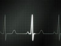 Stres Mengganggu Irama Jantung