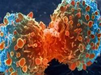 Bagaimana Kanker Muncul?