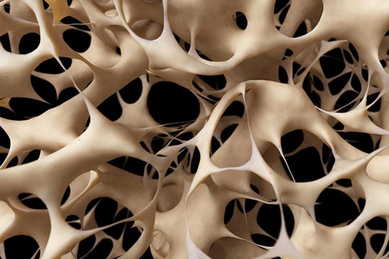Bagaimana Osteoporosis Muncul?
