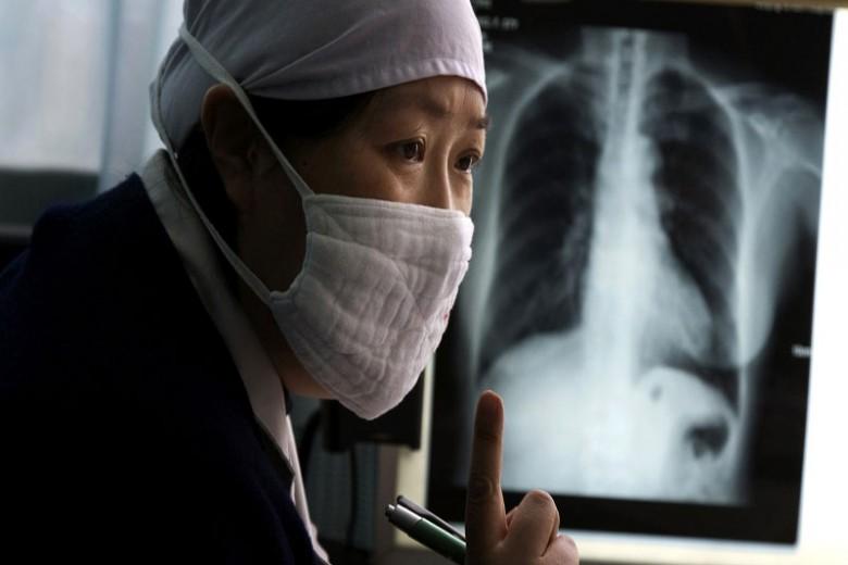 Jumlah Pasien TB di Indonesia Mengkhawatirkan